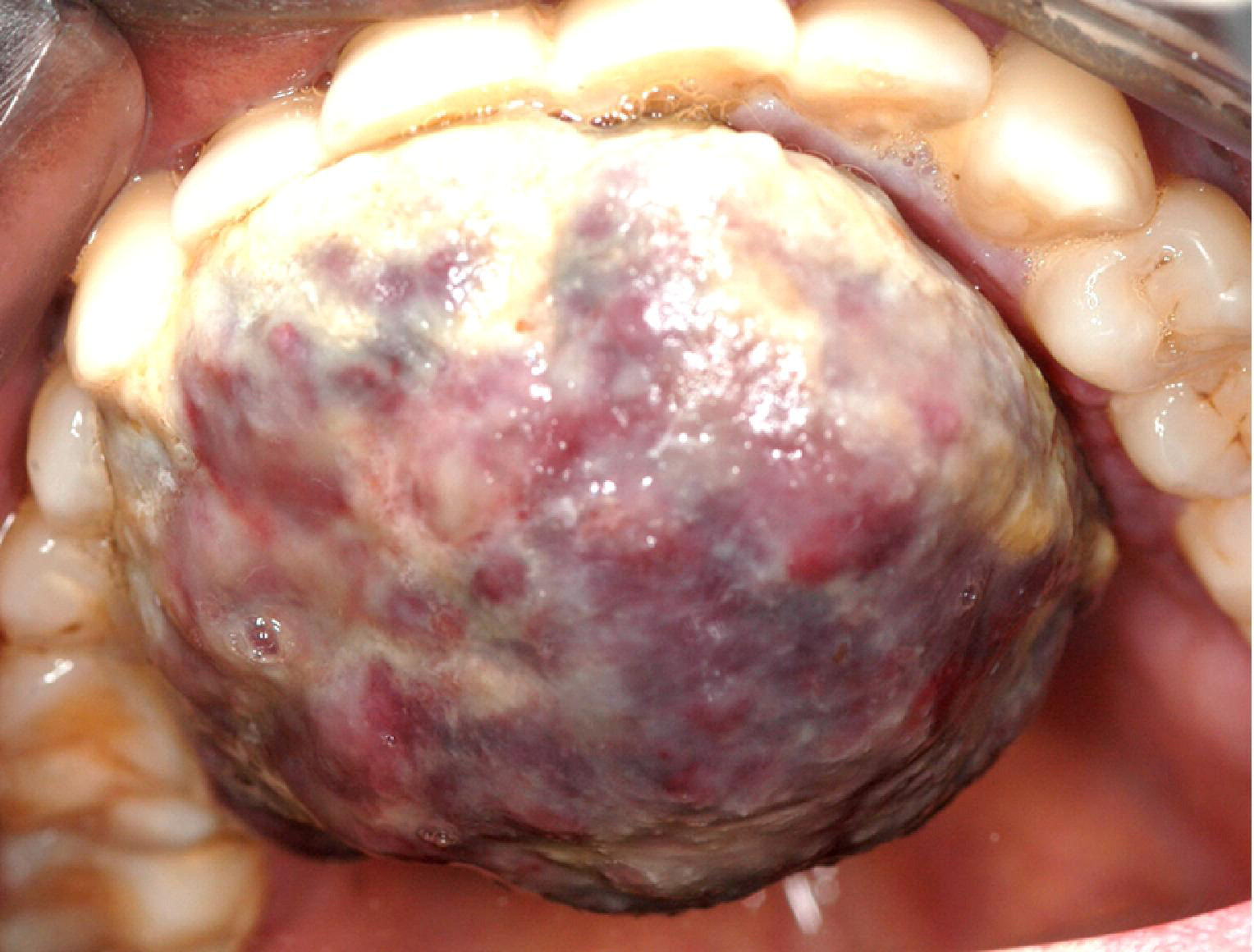 Oral Kaposi sarcoma: a case of immune reconstitution ... Kaposi Sarcoma Mouth