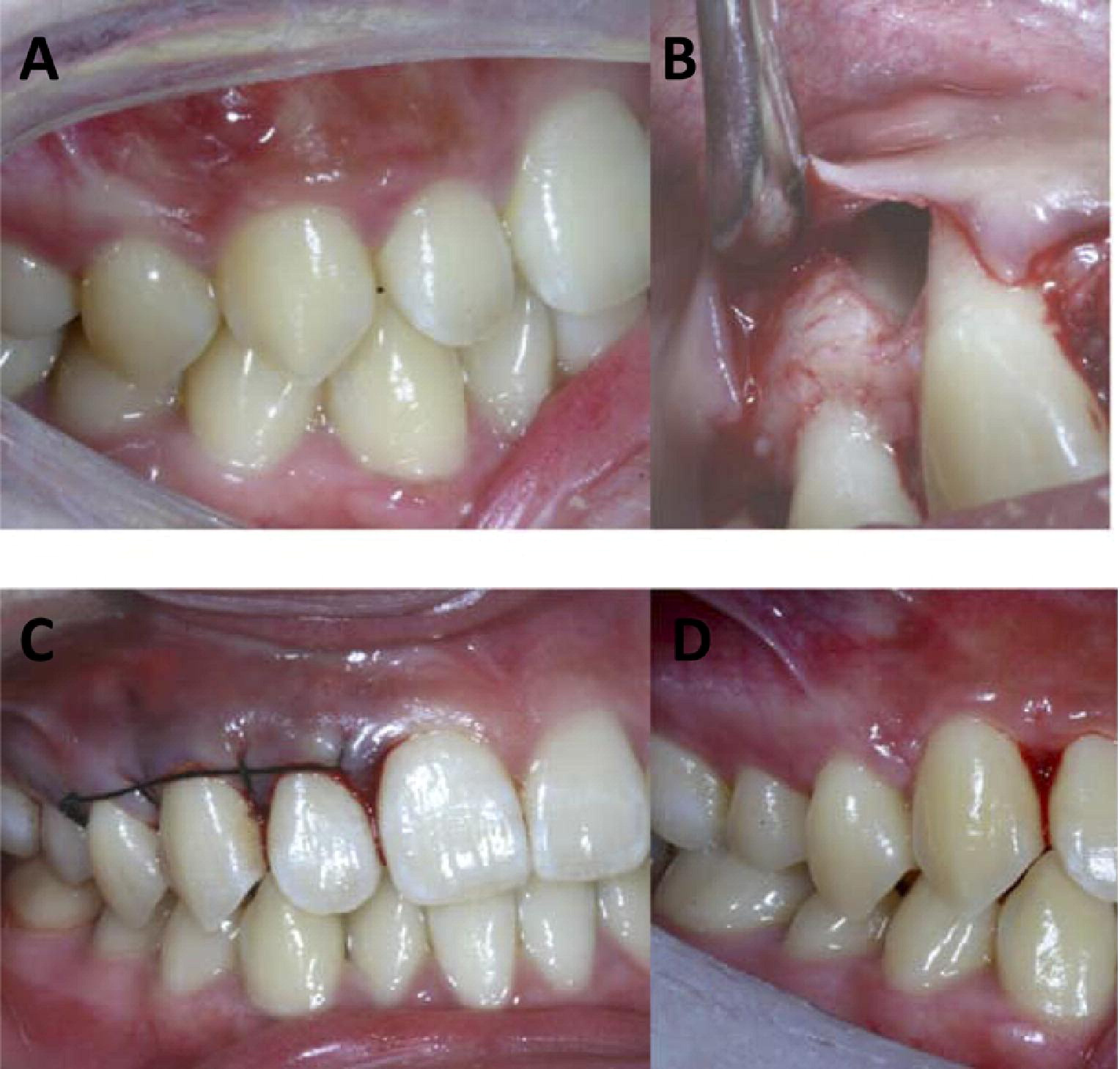 uncommon fusion of teeth and lateral periodontal cyst in a