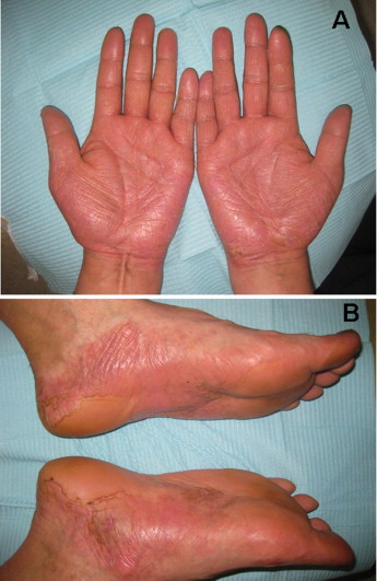 allergic palmoplantar pustulosis caused by cobalt in cast