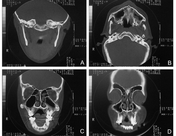 Clinical And Imaging Correlations Of Treacher Collins
