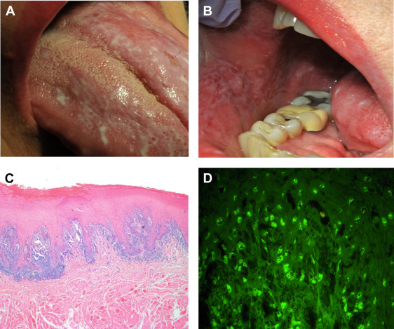 The Diagnostic Challenges Of Separating Chronic Ulcerative